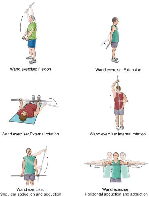 Exercise Rehabilitation for AC Joint Injuries