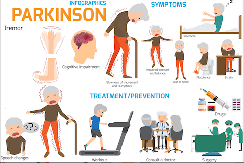 Physio Treatment for Parkinson's Disease