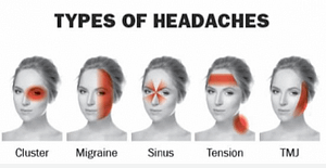 Types of Headaches & Migraines