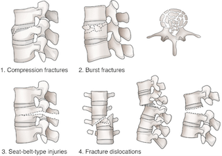 Classification of Vertebral Fractures