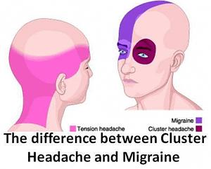 Headache & Migraine Pain Location